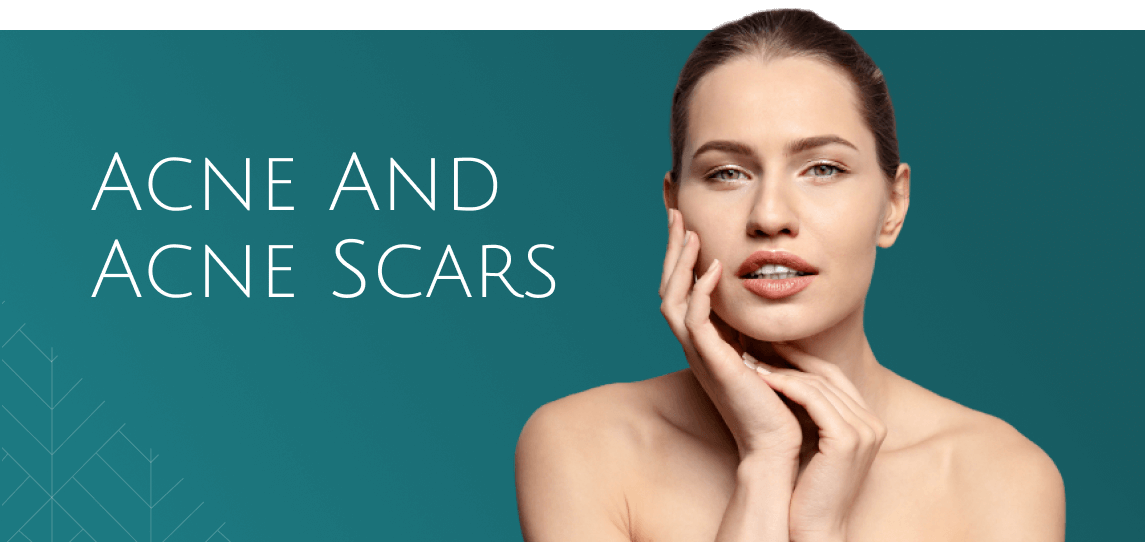 Acne and acne scars