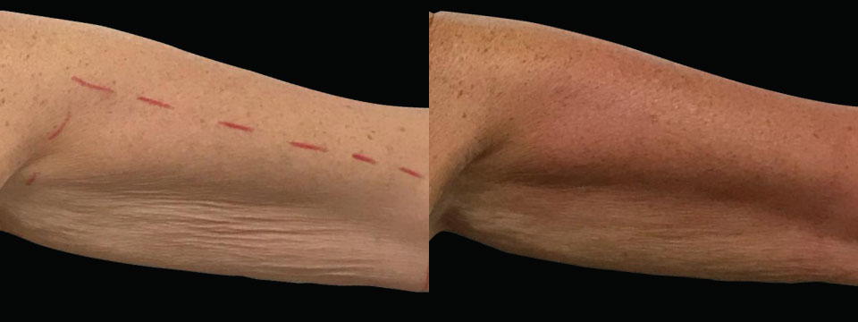 Arms Fat Reduction and Skin Tightening