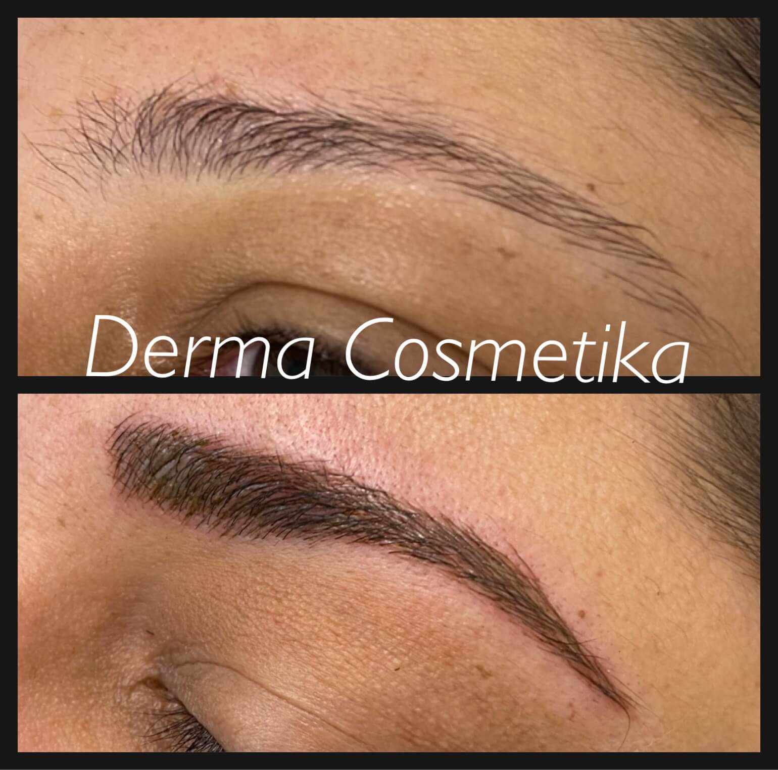 Cosmetic tattoo before after