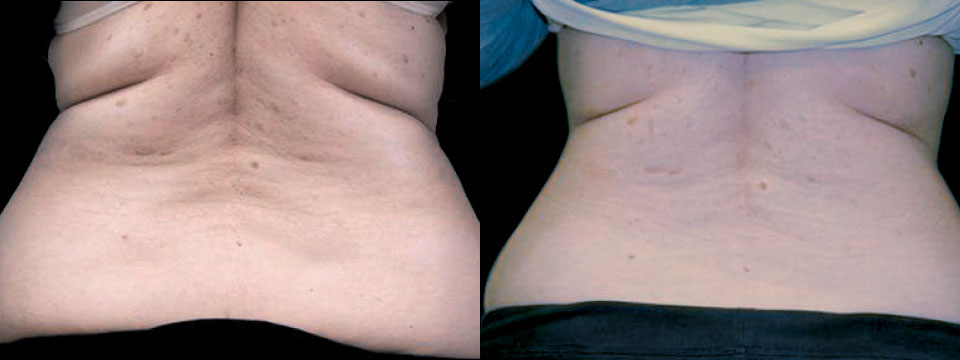 Flanks Love Handles and-Bra-folds-Skin-Tightening and Fat Reduction