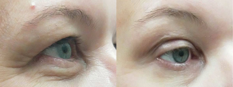 Non-surgical lower blepharoplasty