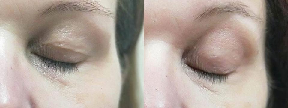 Non-surgical upper eyelid blepharoplasty