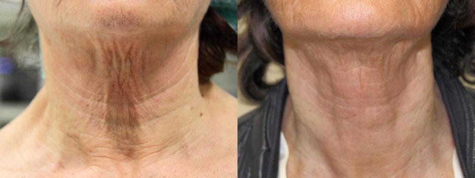 non surgical neck lift