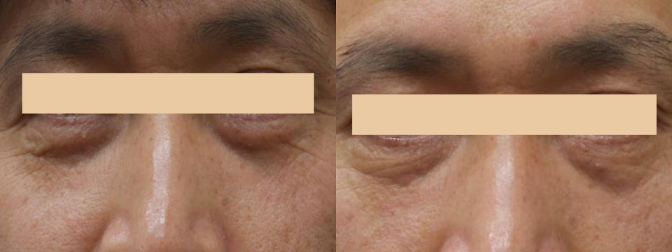 non surgical upper and lower blepharoplasty