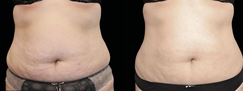 skin tightening fat reduction