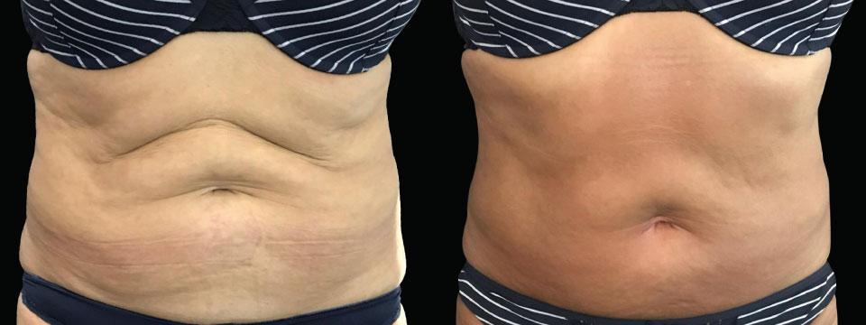 skin tightening lifting